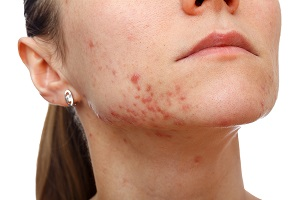 Home Remedies for Pimples Can Be Simple and Effective