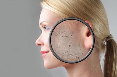 Skin cream DHEA dangers